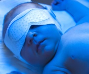 Health Tip: When to call the Pediatrician About Jaundice